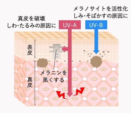 紫外線による光老化の構造