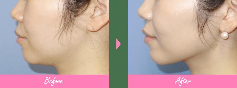 美容 外科 リフト 湘南 糸