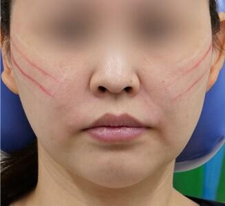 外科 糸 リフト 湘南 美容