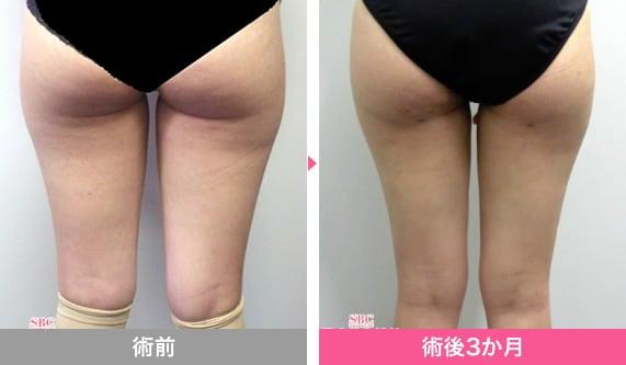 脂肪吸引 危険