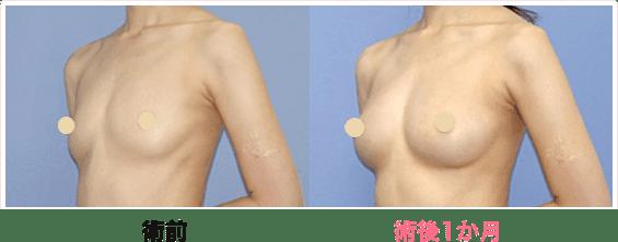 豊胸手術 おすすめ医院