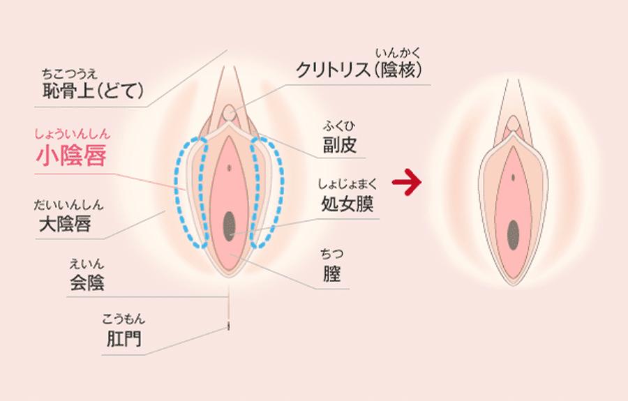 処女膜 再生 手術 湘南 美容 外科 症例写真(婦人科形成) - 湘南美容クリニック