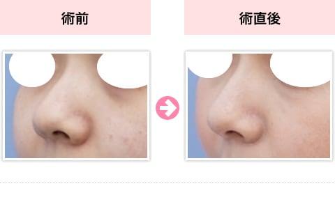 鼻 整形 切ら ない