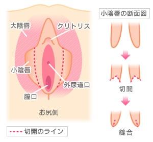 小陰唇形成の失敗 リスクと修正など10項目を徹底分析 美容