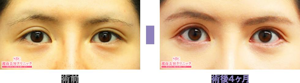 切れ長な印象的な目なら目尻切開法(目・二重術)|二重・目元整形