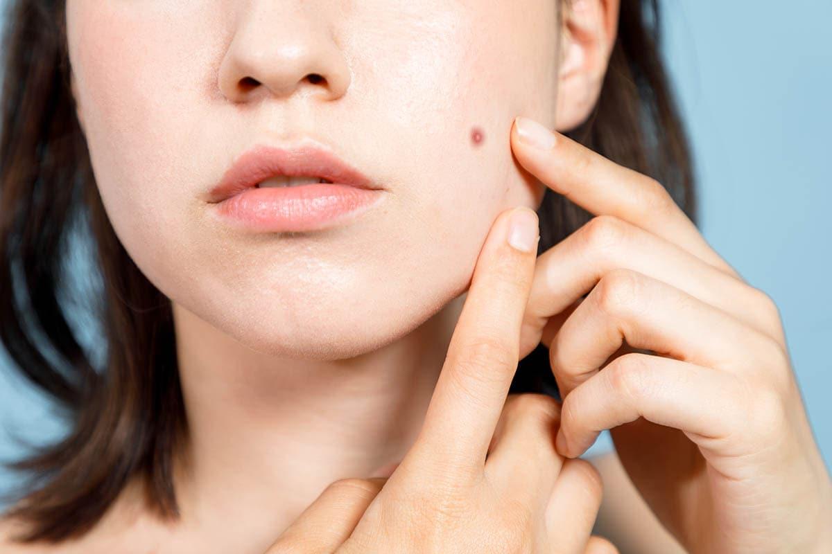 医療脱毛のほくろへの影響|ほくろ部分は施術される?照射でほくろが増える?