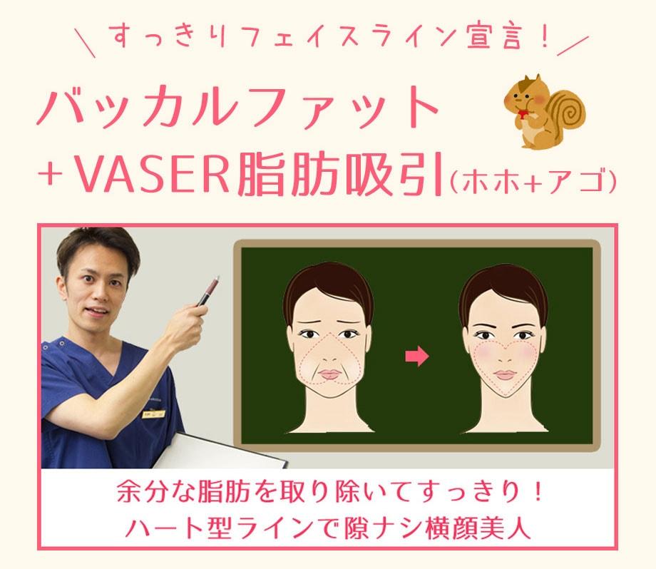 バッカルファット+vaser脂肪吸引(ホホ+アゴ)