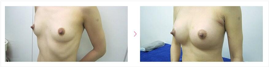 高崎聖子改め高橋しょう子の乳首きたね [無断転載禁止]©2ch.netYouTube動画>2本 ->画像>184枚