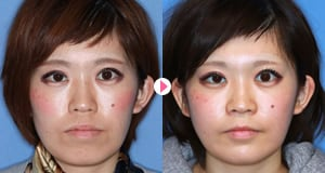 Before&After 症例写真