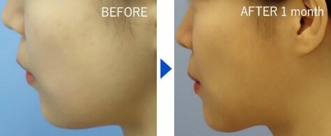 湘南美容クリニックのBNLS注射(小顔注射)の症例写真2
