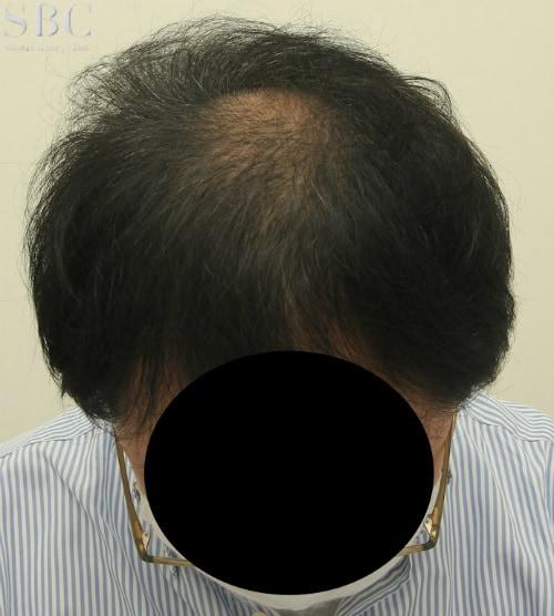 AGA新宿本院による症例11
