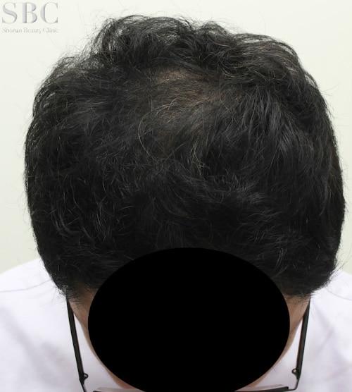 AGA新宿本院による症例12