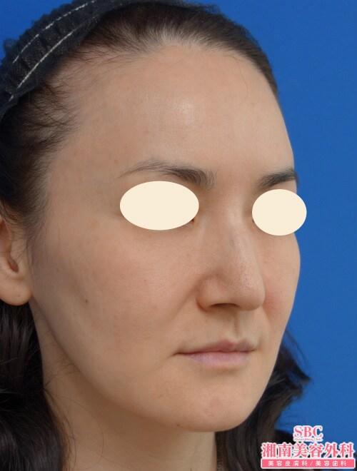 アンチエイジング