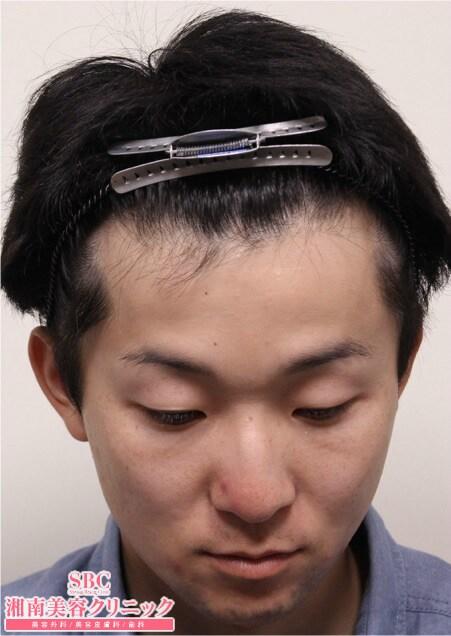 AGA新宿本院による症例15