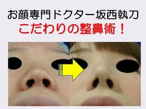 お顔専門ドクター 美容外科医 Dr.坂西 |フォトギャラリー:整鼻術